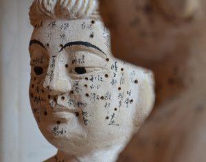 Chinesische Medizin: Akupunktur